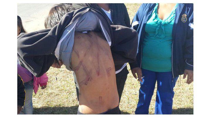 marcado. El agresor se valió de un cable para dar latigazos a los hijos.