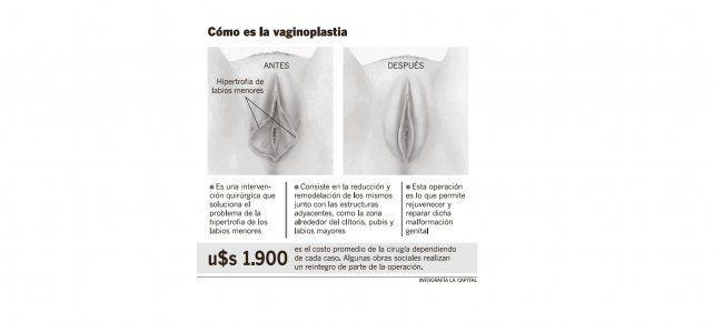 Las rosarinas se animan cada vez más a realizarse un rejuvenecimiento vaginal