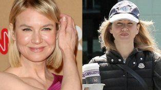 Renée Zellweger otra vez pasó por el quirófano para más cirugías estéticas.