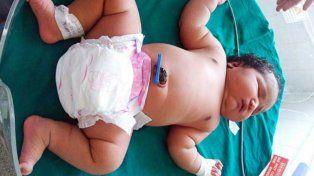 El bebé más grande del mundo nació en la India con 7 kilos  de peso y por césarea