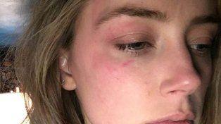 Se conocieron los detalles de la pelea entre Johnny Depp y su esposa que terminó lastimada