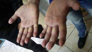 El detalle de las manos de Pérez Corradi.