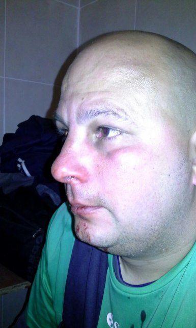 Lingotti recibió golpes en el rostro.