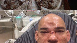 Un luchador sufrió fractura de cráneo y terminó con la frente hundida tras un esperado combate