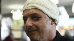 Golpeado. El empresario Gabriel Mana recibió culatazos en la cabeza y patadas en todo el cuerpo.