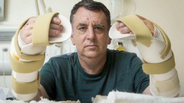 Consideran exitosa la primera operación de trasplante de dos manos