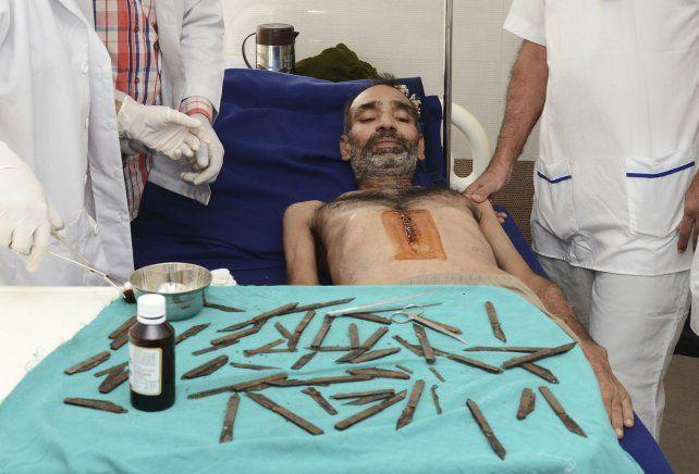 Fue al médico por un fuerte dolor abdominal y lo operaron para sacarle 40 navajas de la panza