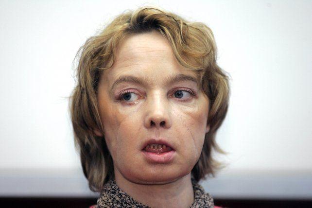 Isabelle Dinoire. La francesa de 49 años murió tras una larga enfermedad.