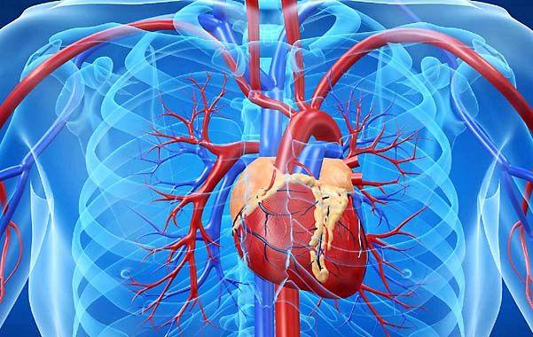 Cateterismo. Una intervención que detecta las arterias tapadas y habilita la desobstrucción.