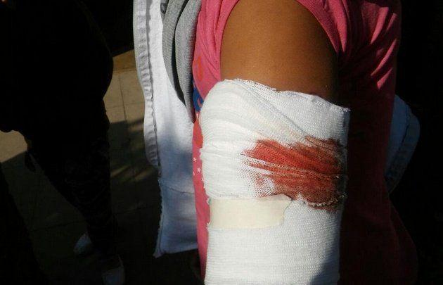 Zamira recibió un disparo en el brazo izquierdo.