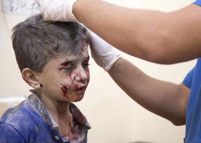 víctima. Un chico herido en un bombardeo. Los precarios hospitales han debido refugiarse en los sótanos.