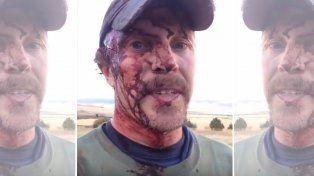 Así quedó un cazador tras ser atacado  por un oso