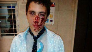 Bautista Beco publicó en sus cuentas de Twitter y Facebook una imagen de cómo quedó después de la golpiza.