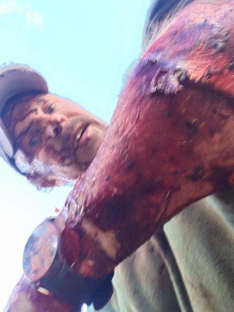 Sobrevivió al ataque de una osa y se grabó para mostrar cómo sangraban sus terribles heridas