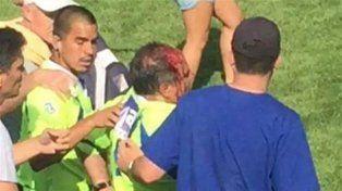 El juez de touch Gustavo Ianchina se retiró de la cancha con una herida ensagrentada.