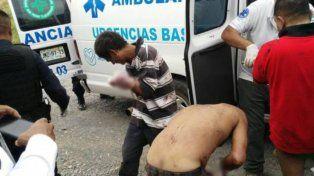 Espeluznante. Dos de los mutilados a quienes los narcos les cortaron las manos.
