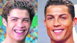 Antes y después. Cristiano Ronaldo fue modificando su rostro con cirugías estéticas .