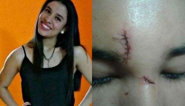 La joven y la herida en el rostro tras ser atacada por un desconocido en un bar.