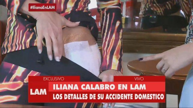 Iliana Calabró se quemó la cola con agua caliente y le quedó en carne viva