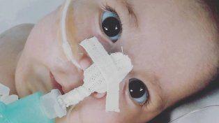 Aquiles tiene siete meses y necesita con extrema urgencia una medicación que no se consigue en el país.