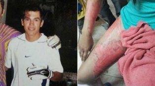 El agresor y la víctima. Así quedó el cuerpo de la joven de 20 años tras ser quemada por su novio.