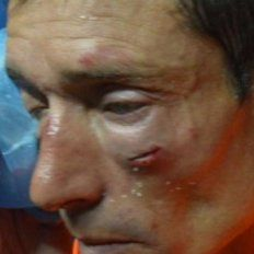 El árbitro del ascenso agredido dijo que los molieron a palos y pidió una dura sanción