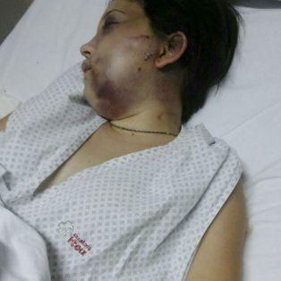 Belén Torres, la joven de 20 años brutalmente golpeada por el anestesista Gerardo Billiris.