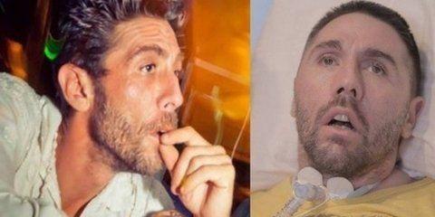 Fabiano Antoniani antes y después de su accidente de moto.