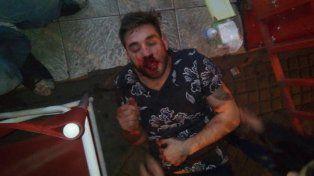 La foto que Pasky subió a las redes tras haber sido agredido en Oroño y Salta.