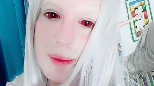 Un joven argentino se sometió a más de 30 cirugías para convertirse en un elfo