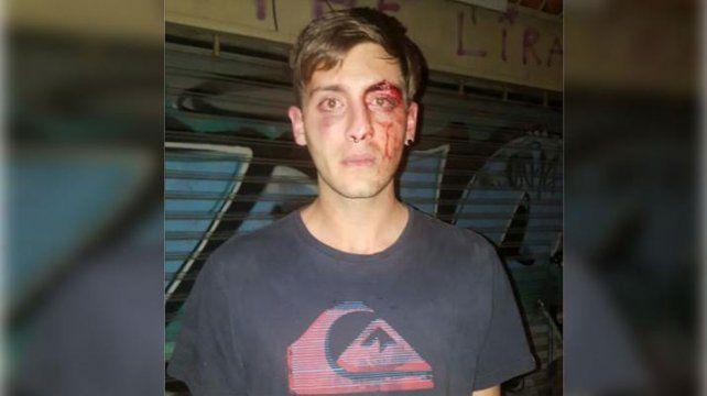 Un joven sufrió varias fracturas en la cara tras ser brutalmente atacado por patovicas