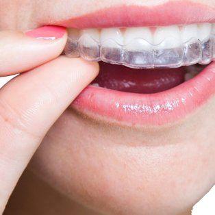 ya esta en rosario el tratamiento de ortodoncia que no se ve