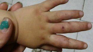 Además de golpearla con la puerta, la nena fue mordida por el joven en las manos.