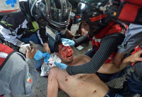 violencia sistemática. Un manifestante es asistido en las calles de Caracas el pasado 31 de mayo.