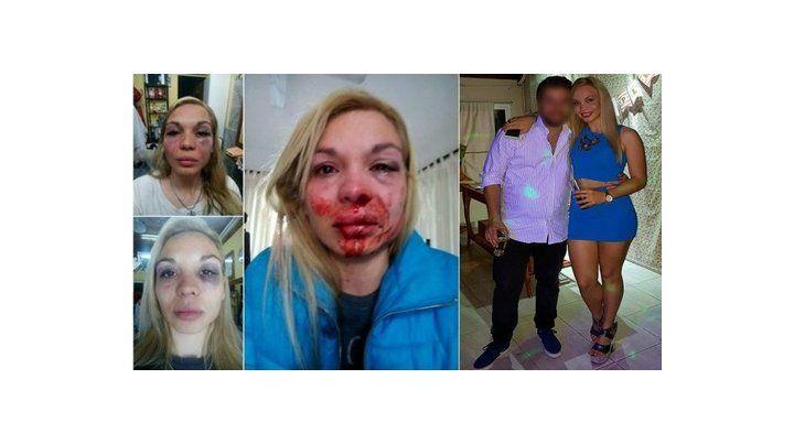 La joven víctima de la violencia.