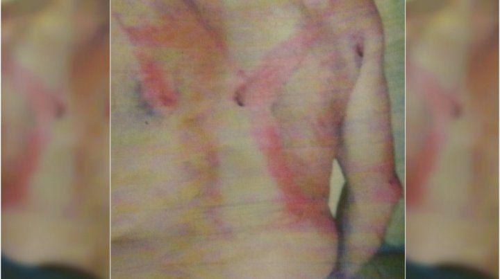 Un hombre denunció que fue golpeado brutalmente por pedir horas extras