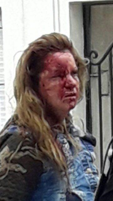 Feroz ataque de una travesti a una prostituta en cercanías de la terminal de ómnibus