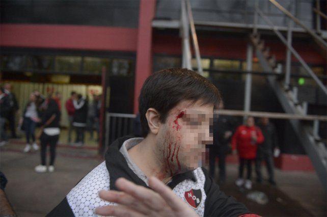 Herido. Uno de los asambleístas de Newells exhibe el golpe que sufrió dentro del club.