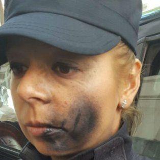 pintaron con aerosol en el cuerpo y en la cara a una policia en la puerta de la morgue portena