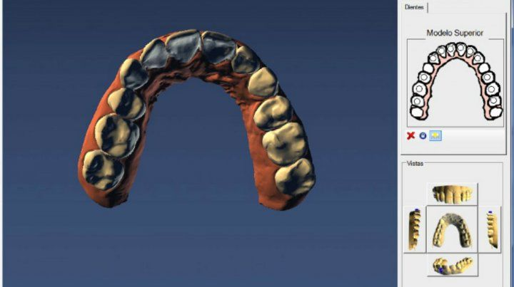 La ortodoncia invisible al alcance de todos de la mano de Nobracks!