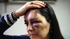 Karina exhibe el hematoma que sufrió luego del incidente en Pellegrini y Alem.