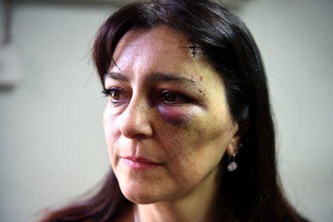 lesionada. Carina B. recibió un violento golpe en su ojo izquierdo. Ella dice que le tiraron con una manopla.