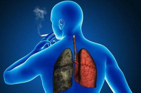 cáncer de pulmón Hacía más de 30 años que no había nuevas opciones terapéuticas en estados avanzados.