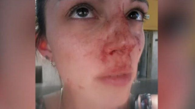 Una de las fotos que publicó la víctima en las redes sociales tras la agresión.