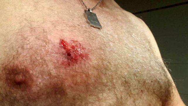 El relato de un ciclista atacado con una bomba de estruendo