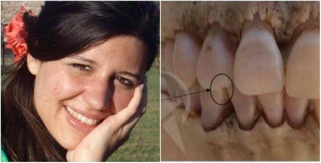 El cráneo fue hallado cuatro meses después de la desaparición de la joven.