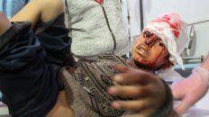 Criminal. Uno de los chicos heridos por las bombas del régimen sirio, que es respaldado por Irán y Rusia.