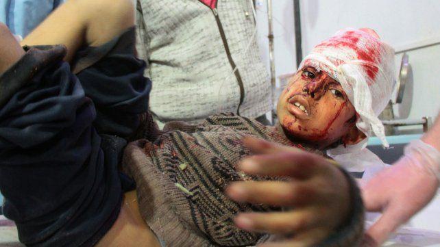 Criminal. Uno de los chicos heridos por las bombas del régimen sirio