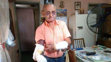 Por un magro botín, golpearon brutalmente a un anciano en Pérez