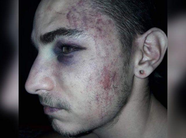 Así quedó uno de los chicos agredidos tras los apremios a los que fue sometido por los policías.